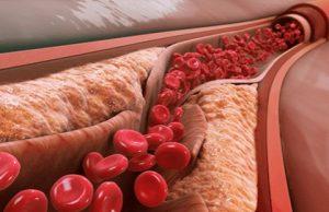 Aterosklerozė